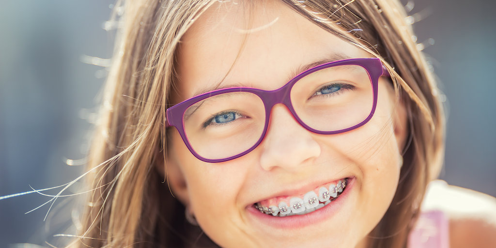 Orthodontics and Clear Aligners